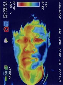顔面神経麻痺(治療前)