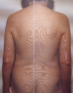 骨棘が原因の腰痛の原因|体の重心バランスの傾き(治療後)