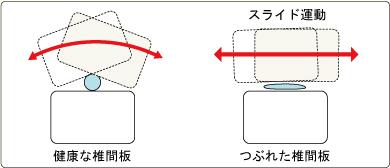 健康的な椎間板・つぶれた椎間板