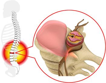 腰を捻ることでおこる腰痛