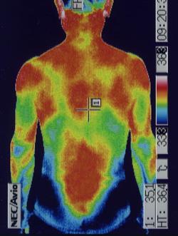 ゴルフの腰痛の原因|筋力低下や背中の温度分布(治療後)