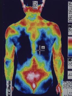 ゴルフの腰痛の原因|筋力低下や背中の温度分布(治療前)