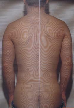 左投げ腰痛 モアレ画像