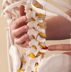 椎間板を痛めた腰椎
