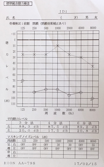 鍼治療前の突発性難聴