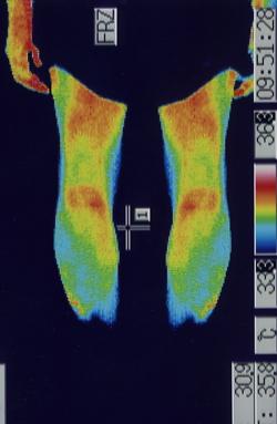 突発性難聴の原因|ふくらはぎの血流(治療後)