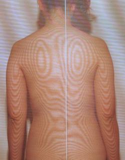 顔面神経麻痺後遺症の検査モアレ