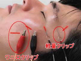 顔面神経麻痺の鍼治療