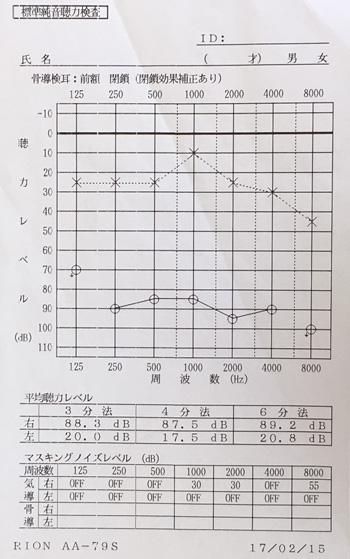耳鳴りの原因|ストレスで血流が低下した顔(治療前)