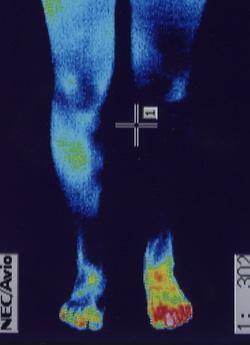 外反母趾|筋肉の代謝異常を調べます。