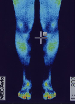 特発性側湾症の原因|筋力低下や背中の温度分布(治療後)