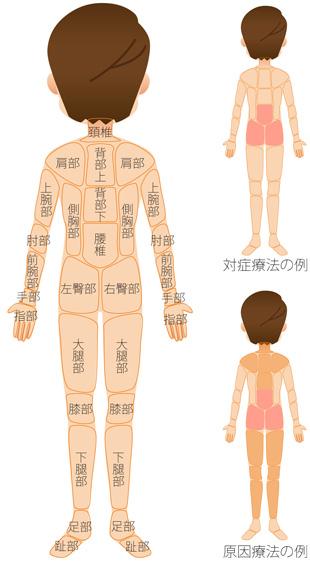 腰痛の原因療法の治療範囲