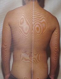 野球の腰痛 モアレトポグラフィー
