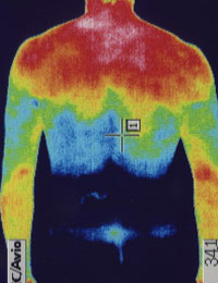 野球の腰痛 サーモグラフィー