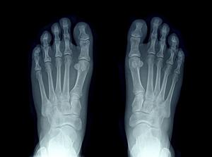 足のX線検査画像