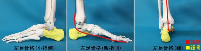 踵骨骨折と筋腱