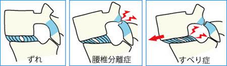 腰椎分離すべり症