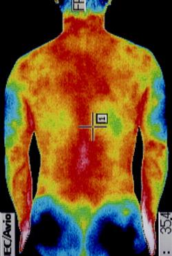 スポーツ外傷・障害の原因|左右の筋力低下や関節炎の温度分布(治療後)