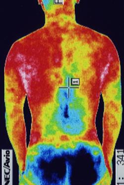 スポーツ外傷・障害の原因|左右の筋力低下や関節炎の温度分布(治療前)