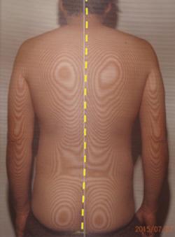 おねしょの原因|体の重心バランスの傾き(治療後)