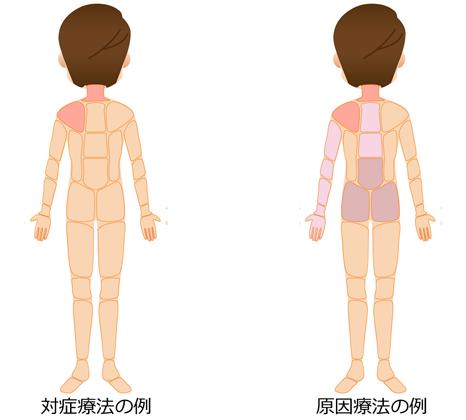 対処療法 原因療法の治療部位