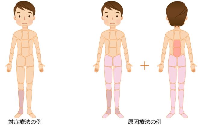 足関節捻挫の治療|対症療法|原因療法の治療部位