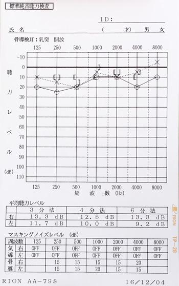オージオグラム(治療後)