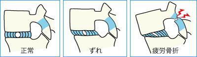 腰椎分離症・椎間板ヘルニア