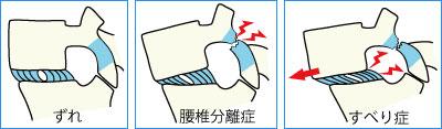 健康な椎間板・つぶれた椎間板