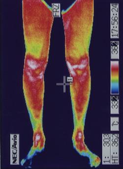 スポーツ障害(ランナー膝)