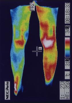 右膝関節炎(後側)