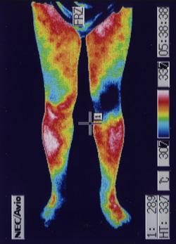 右膝の関節炎(前側)