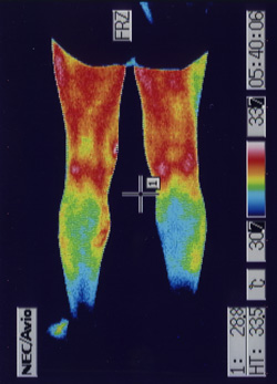 右膝の関節炎(後側)