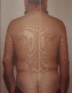頚椎の側彎(治療前)