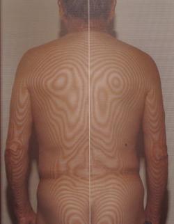 頚椎の側彎(治療後)