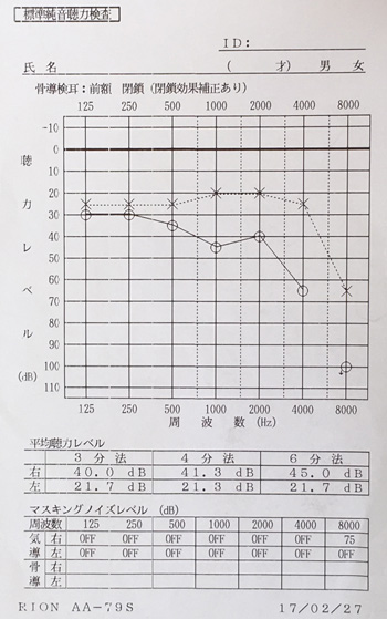 脳溢血後遺症 サーモ画像(腰)