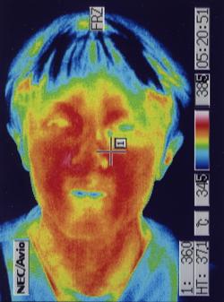聴覚補充現象を治す治療(星状神経の緊張が取れて血液循環が改善した顔