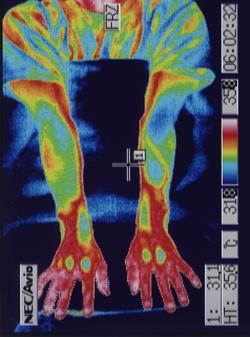 聴覚補充現象を治す治療(星状神経の緊張が取れて血流が改善した手)