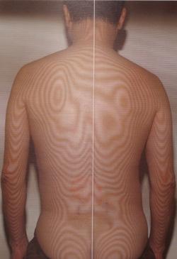 腰椎分離すべり症 モアレ(治療前)