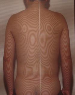 後縦靭帯骨化症 モアレ 治療前