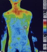 突発性難聴の原因 ふくらはぎの血流(治療前)