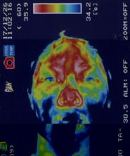 突発性難聴の原因|ストレスで血流が低下した顔(治療前)