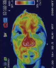 突発性難聴の原因 鍼治療で血流が改善した顔(治療後)