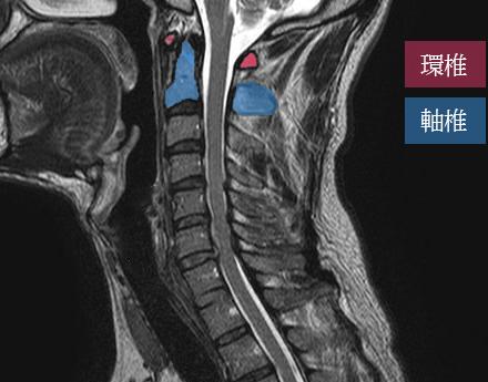 環椎と軸椎