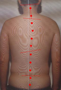聴覚補充現象を治す障害(治療後に真っ直ぐになった首)