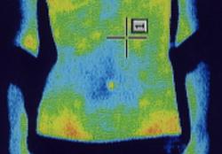 痙性斜頸の原因|筋力低下や腕から手にかけての温度分布(治療前)