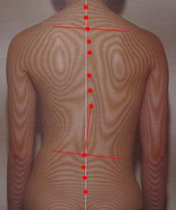 痙性斜頸の原因|体の重心バランスの傾き(治療後)