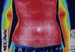 痙性斜頸の原因|筋力低下や腕から手にかけての温度分布(治療後)