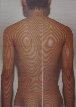 腰椎分離すべり症 治療前
