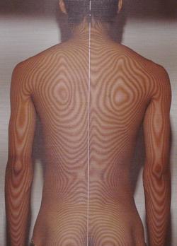 腰椎分離すべり症 治療後